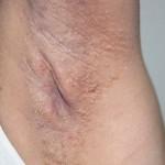 Fox Fordyce Disease