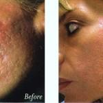 Acne Scar Microdermabrasion