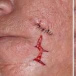 Acne Scar Removal