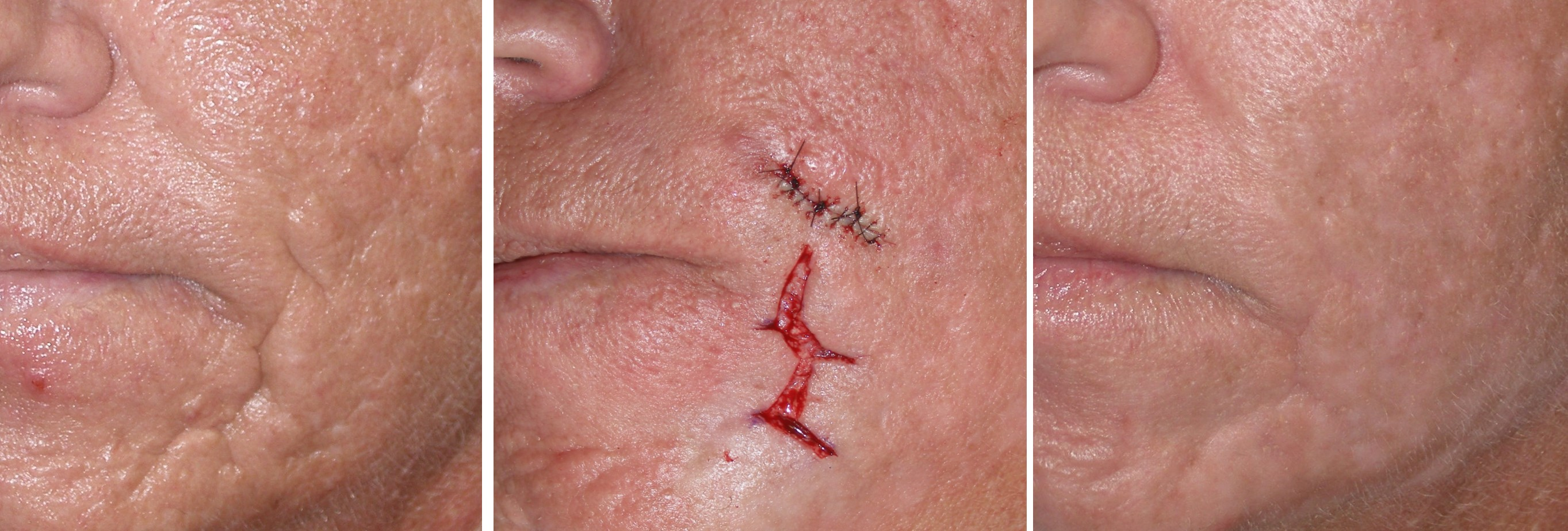 Acne Scar Removal Medical Pictures Info Health Definitions Photos