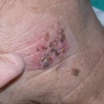 Benign Juvenile Melanoma