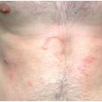 Berloque Dermatitis