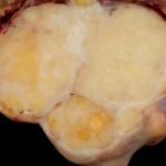 Brenner Tumor