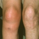 Bursitis Knee