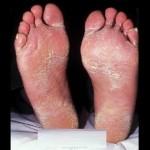 Candida Skin Fungus