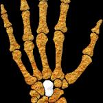 Capitate Bone