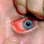 Chlamydia Disease