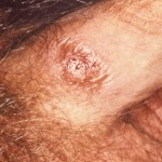 Chlamydia Symptom