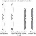 Chromosome Translocations