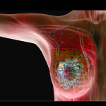 Ductal Carcinoma