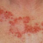 Intraepidermal Carcinoma