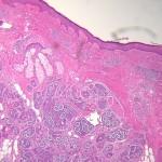 Mucoepidermoid Carcinoma