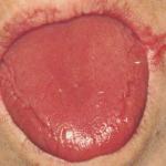 Plummer-Vinson syndrome