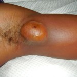 Scalp Cyst
