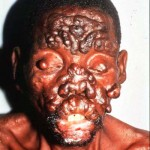 Hansen's disease