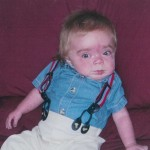 Hurler Syndrome