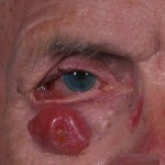 Hutchinson's Freckle