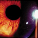 Lattice Dystrophy