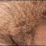 STD Wart