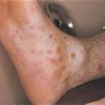 Syphilis Pictures