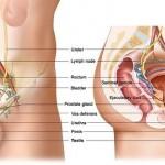 Testicular Cance