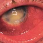 Endophthalmitis
