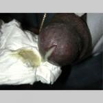 Gonorrhea Male
