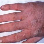 Porphyria Picture