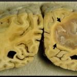 Brain Tumor Picture
